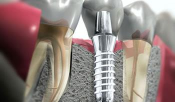 Цены на импланты в стоматологии